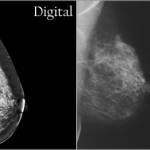 The Screening Mammography Furor: My Viewpoint as a Breast Surgeon