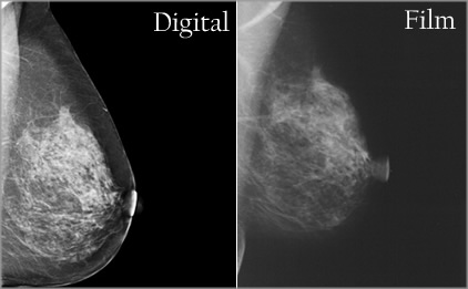 digital-mammogram